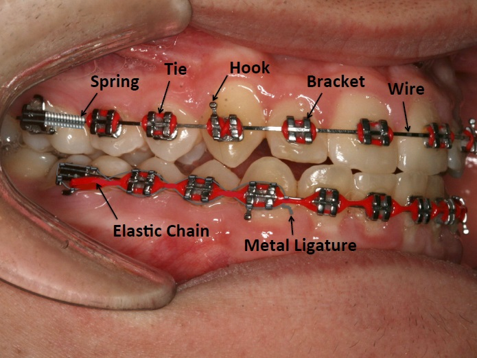 Patient zone only orthodontics i cant wear my removable brace ccuart Choice Image